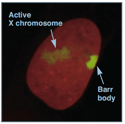active X-chromosome