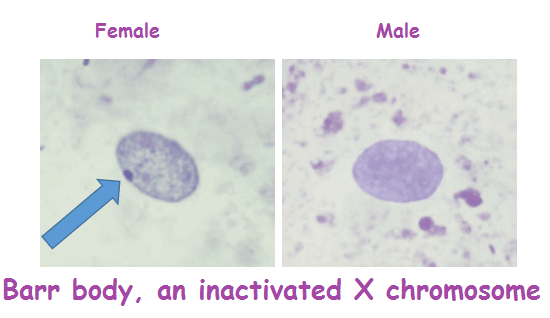 inactivated X-chromosome