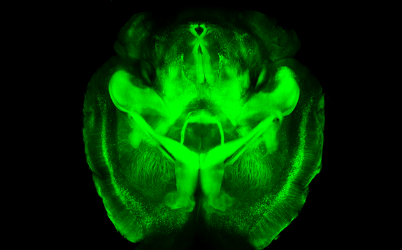 fluorescent-transparent-brain